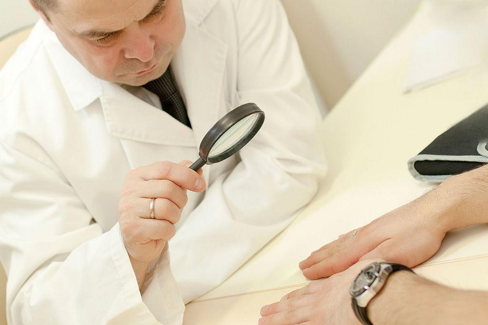 Дерматолог осматривает кисти рук и ногти у пациента