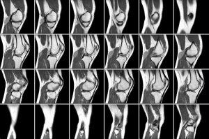 Снимок точного результата МРТ коленного сустава