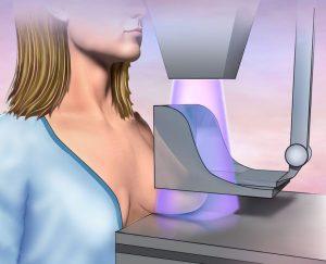 сделать маммографию в Подольске