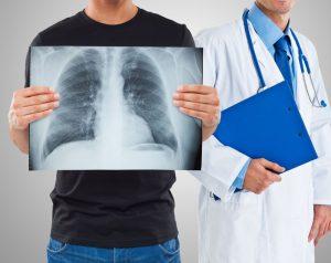 рентген легких в Подольске