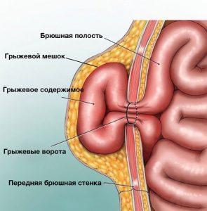 лечение пупочной грыжи