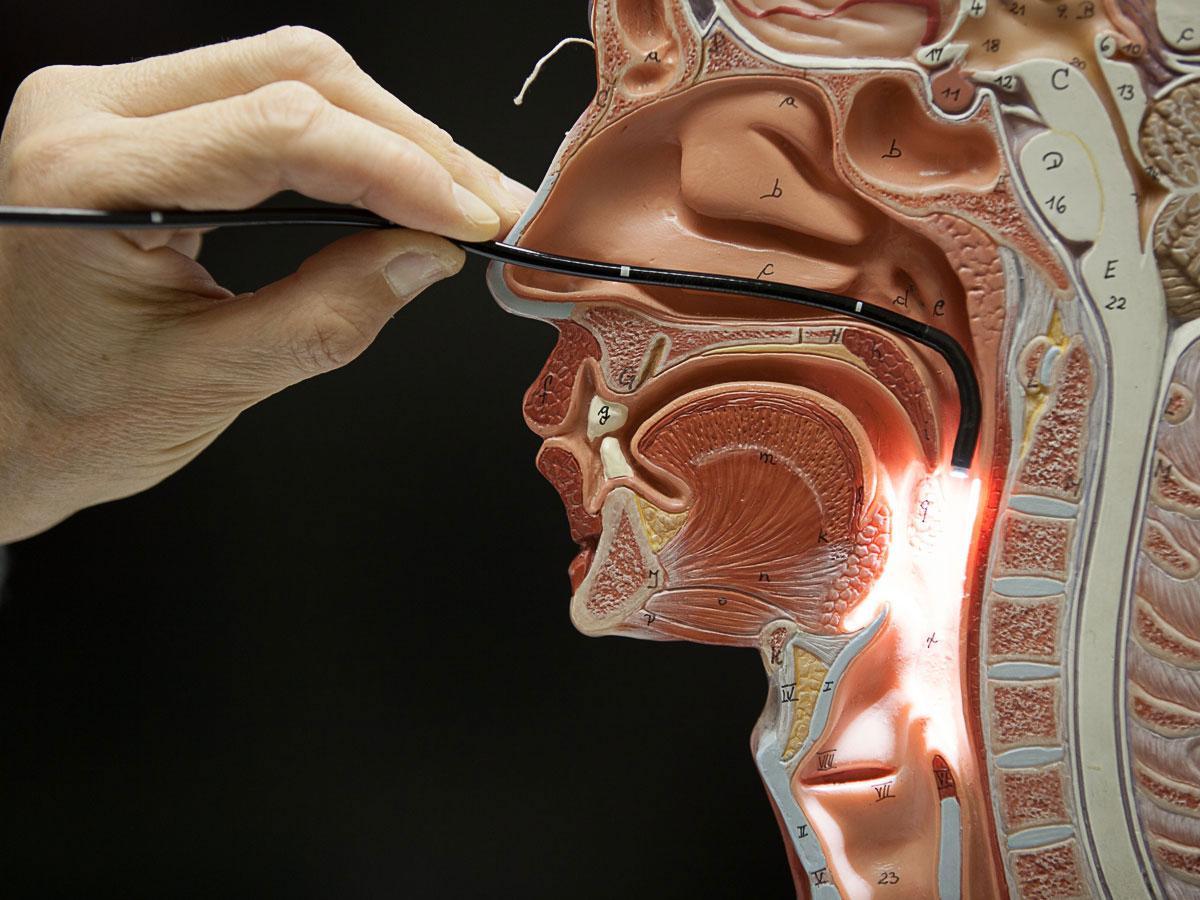 Анатомия и эндоскопия картинки