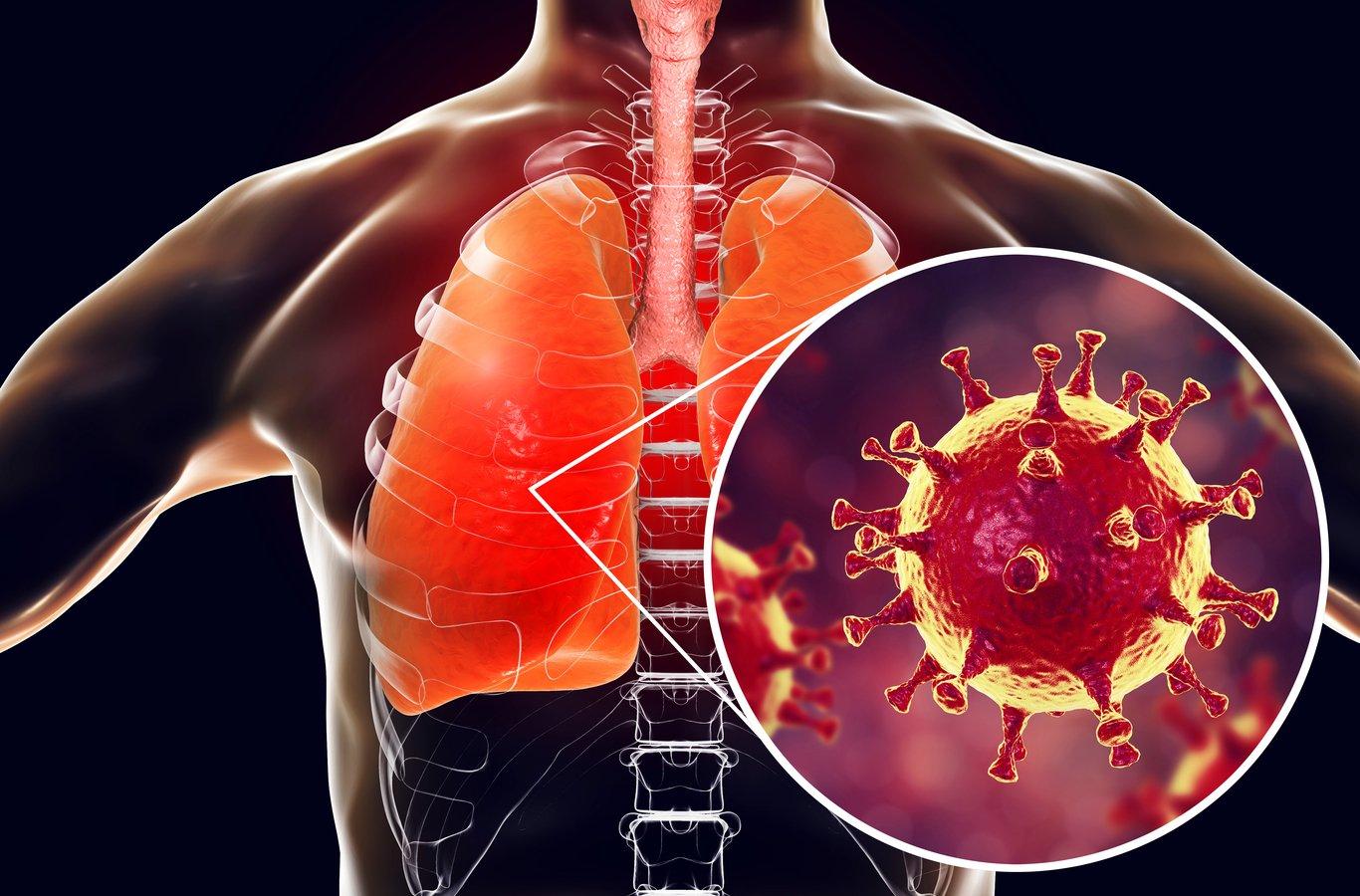 УЗИ лёгких может выявить коронавирус!